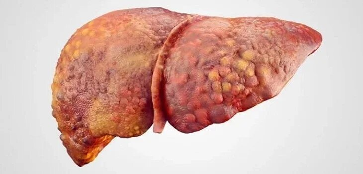 Ayurvedic Treatment for Cirrhosis of Liver in Accra
