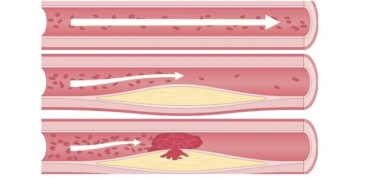 Ayurvedic Treatment for Atherosclerosis in Ajmer
