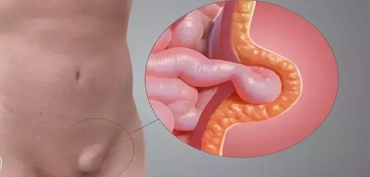 Ayurvedic Treatment for Hernia in Baraut