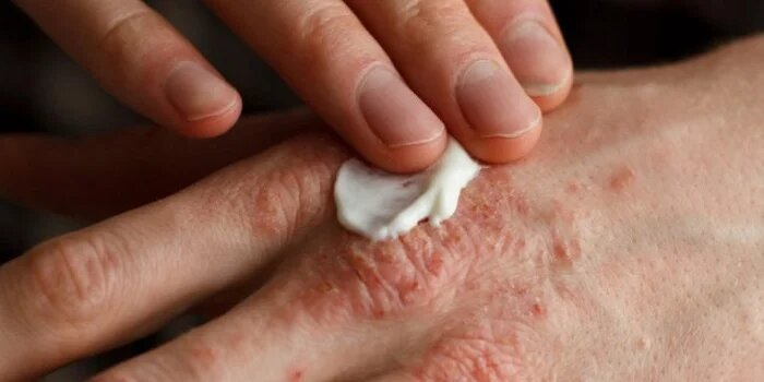 Ayurvedic Treatment for psoriasis in Indore
