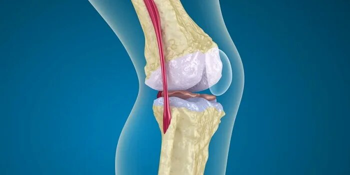 Ayurvedic Treatment for Osteoporosis in Laos