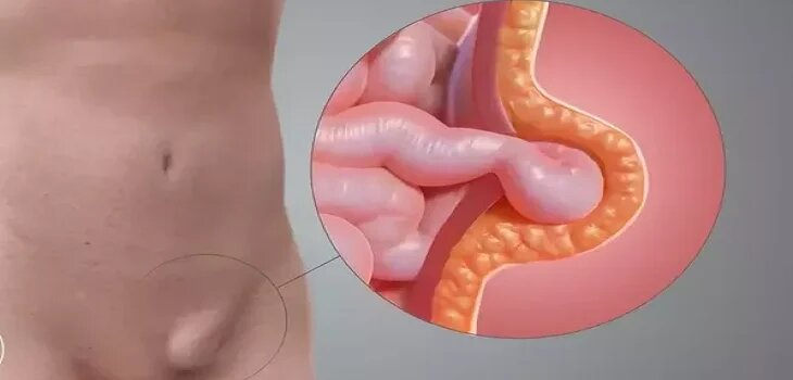Ayurvedic Treatment for Hernia in Moradabad