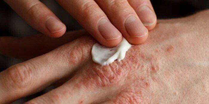Ayurvedic Treatment for psoriasis in Nashik