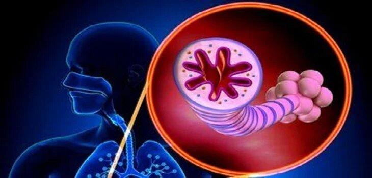 Ayurvedic Treatment for Asthma in Panchkula
