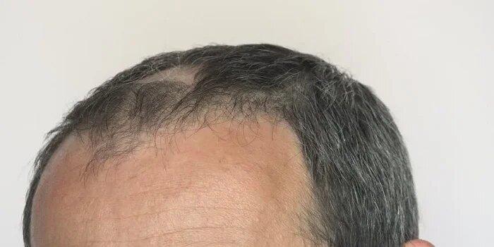 Ayurvedic Treatment for Hair Problems